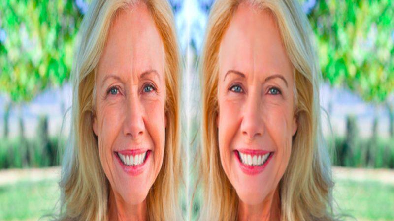 lifting-facial--fios-de-sustentacao-1
