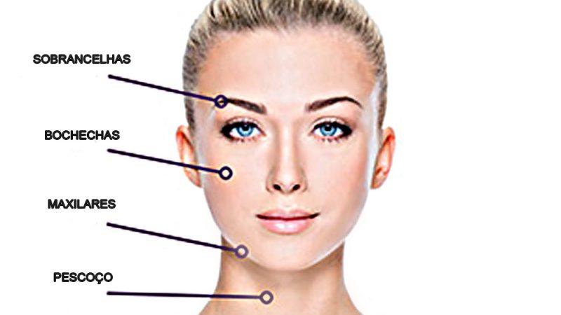lifting-facial--fios-de-sustentacao-2