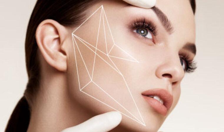 lifting-facial--fios-de-sustentacao-3