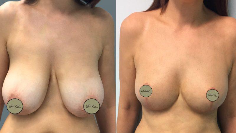 mamoplastia-de-reducao-2