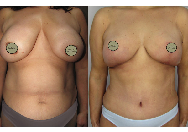 mamoplastia-de-reducao-3