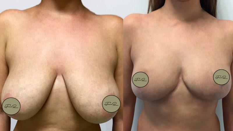 mamoplastia-de-reducao-4