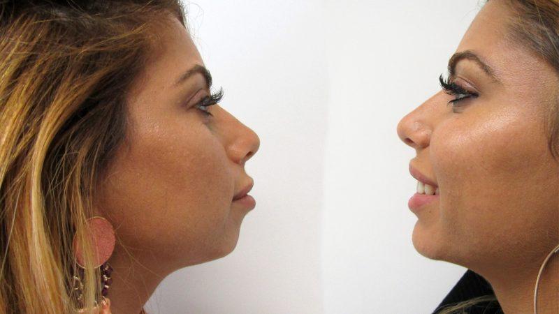 mentoplastia-nao-cirurgica-2