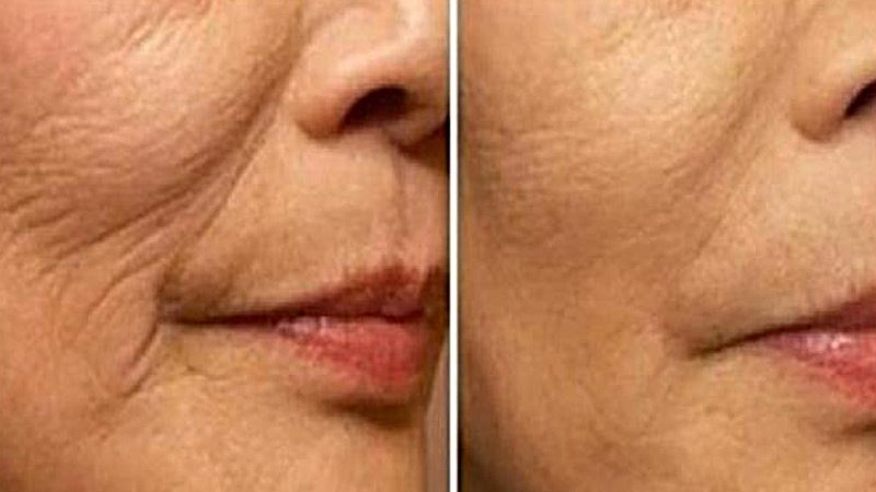 skinboosters-2