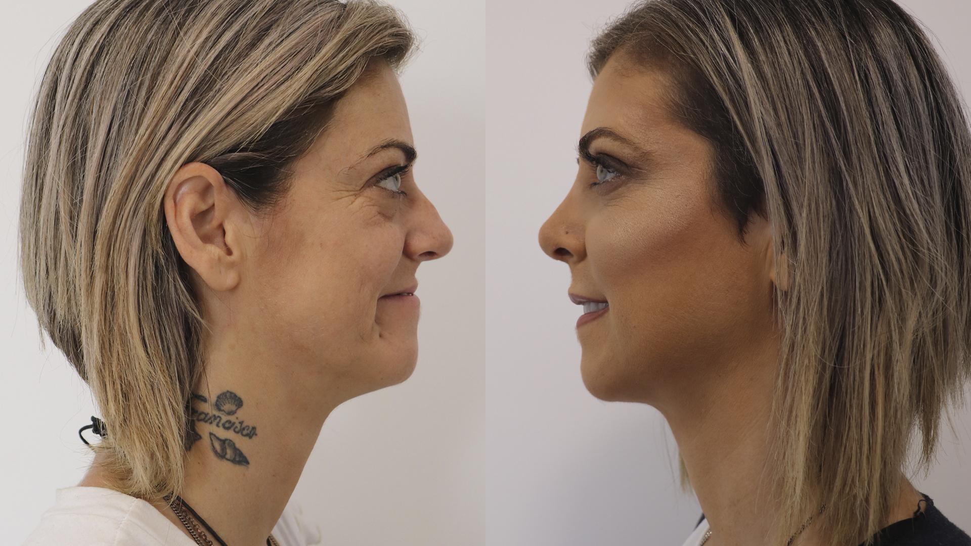Cátia Moreira - Rinoplastia - Blefaroplastia superior - Injeção de gordura nos sucos - Redução de rugas com Ácido Hialurónico e Toxina Botulínica